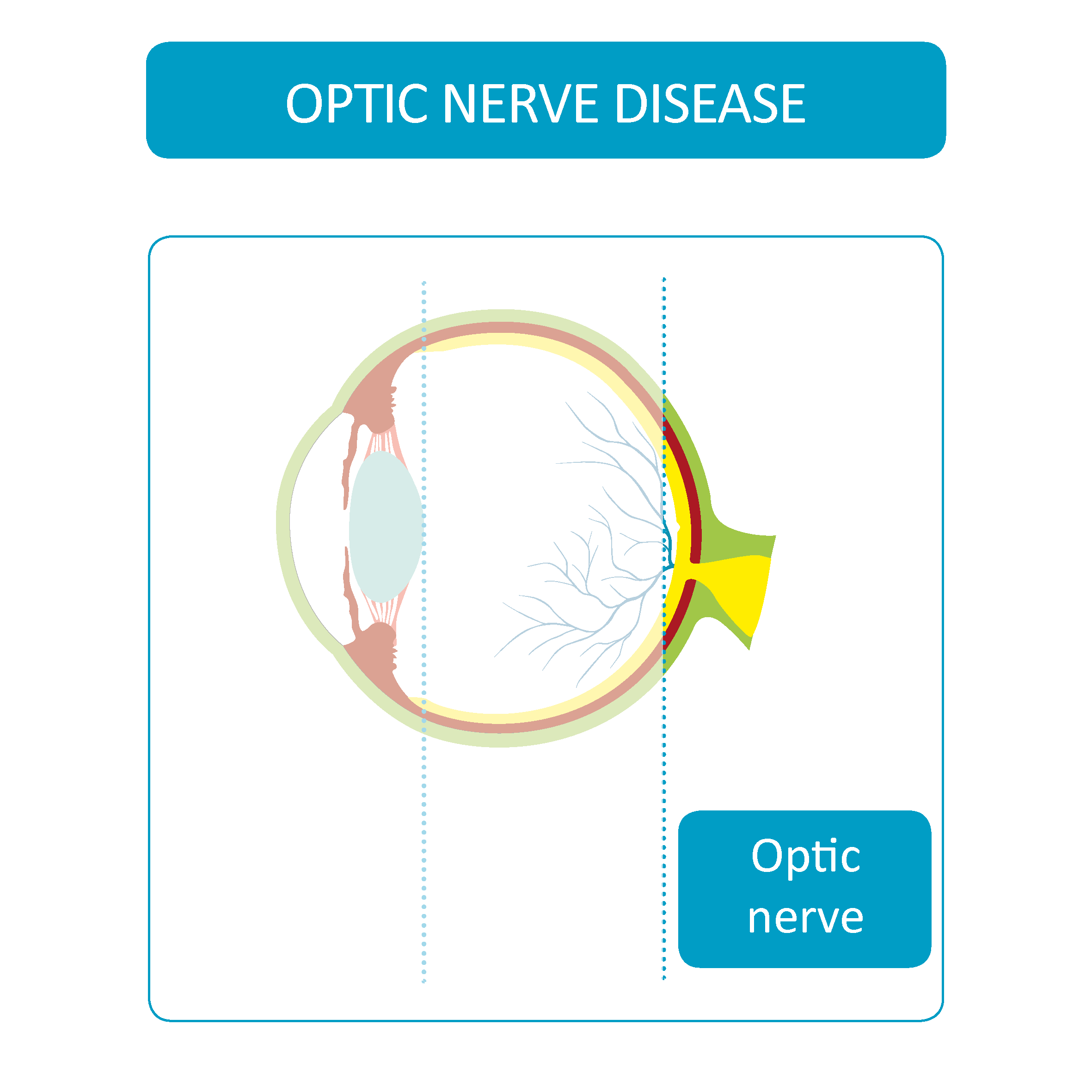 Optic nerve diseases